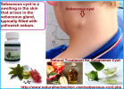 Treatment of Sebaceous Cyst - Natural Herbs Clinic