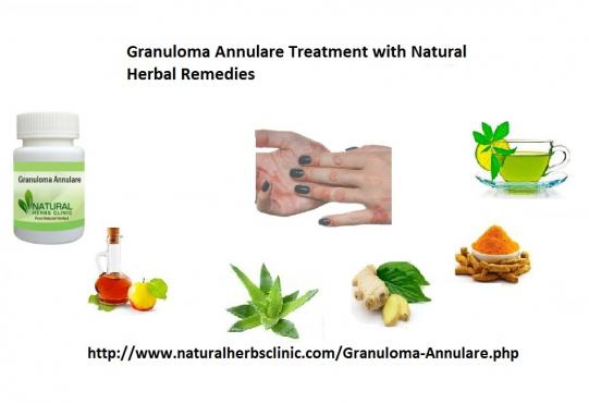 Natural Herbal Treatment For Granuloma Annulare